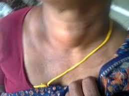 A nőknél gyakori a pajzsmirigy túlműködés