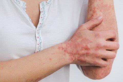 bőrgyógyászati magánrendelés budapest
